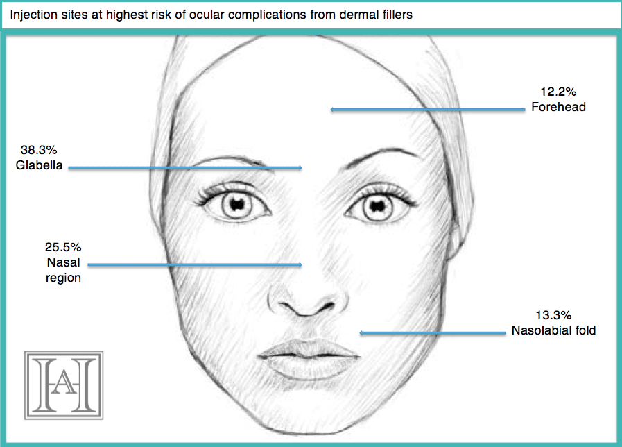Diagram dermal fillers risk