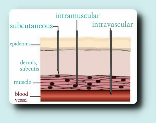 Injection Diagram