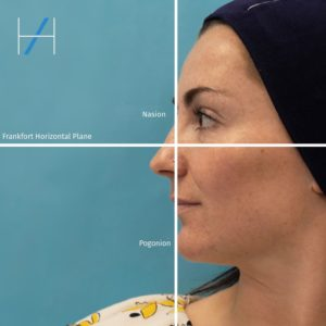 How to assess the chin and lower face - the Frankfort Horizontal Plane