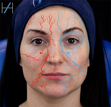 Mechanism for Central Retinal Artery occlusion leading to blindness with dermal filler injection - Harley Academy Injectables Training