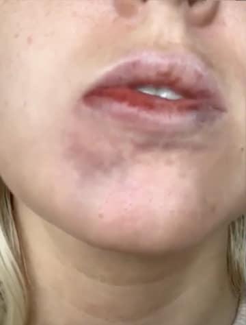 Vascular occlusion - Lip Filler complications