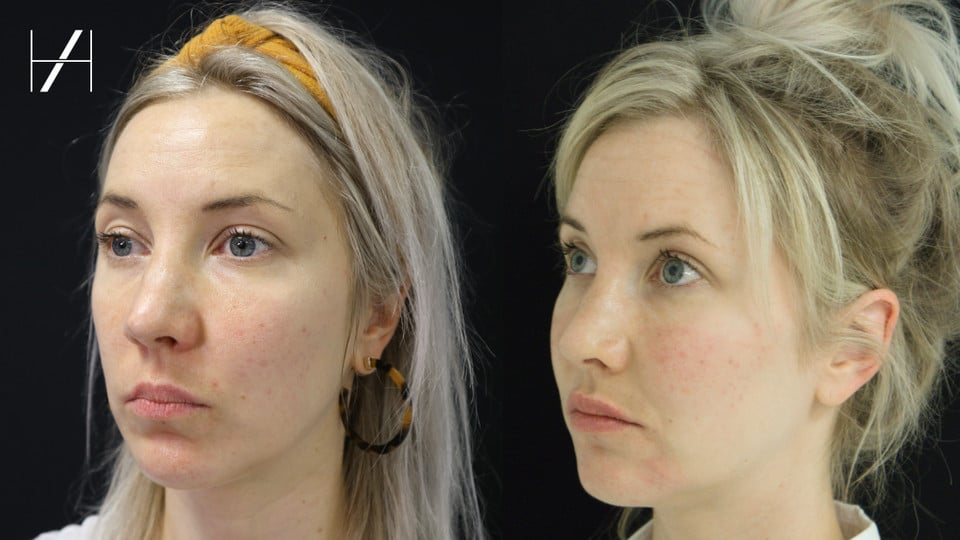 Before and After - Dermal filler cheek fillers lip filler - Harley Academy aesthetic medicine training courses injectables aesthetics