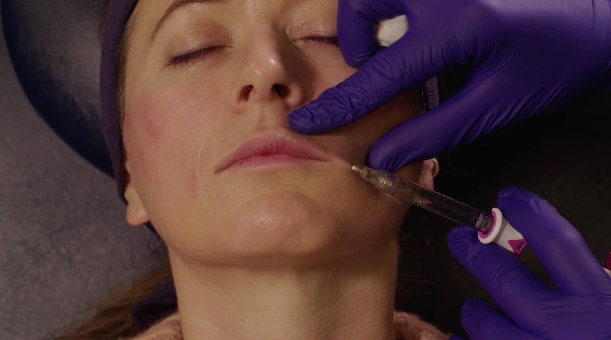 1:1 Training in Perioral & Lip Filler
