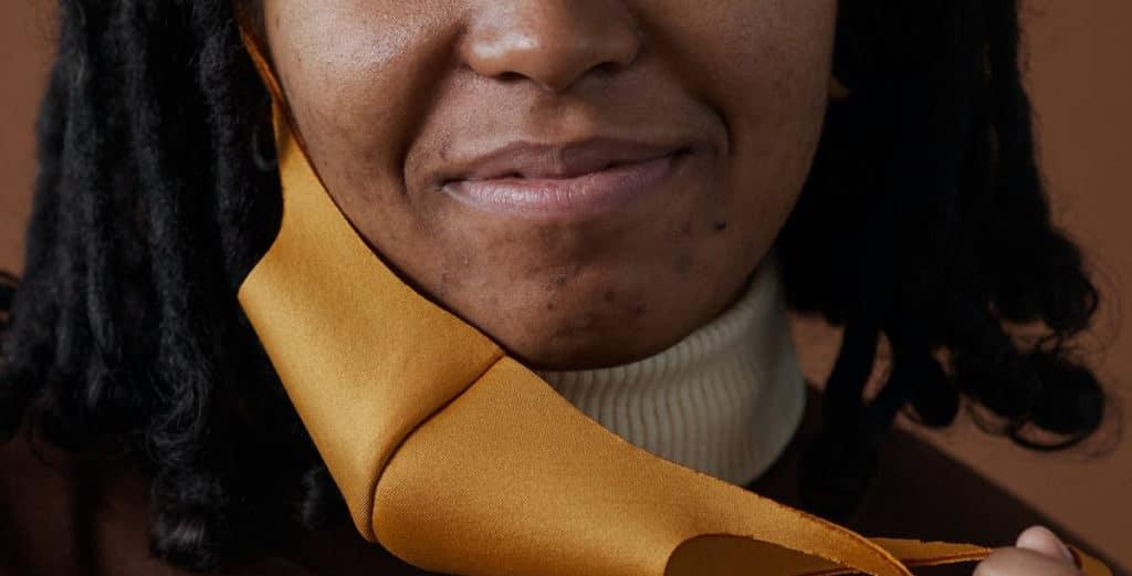Maskne face mask acne treatment - Harley Academy Aesthetic Medicine training courses cosmetic dermatology aesthetics courses