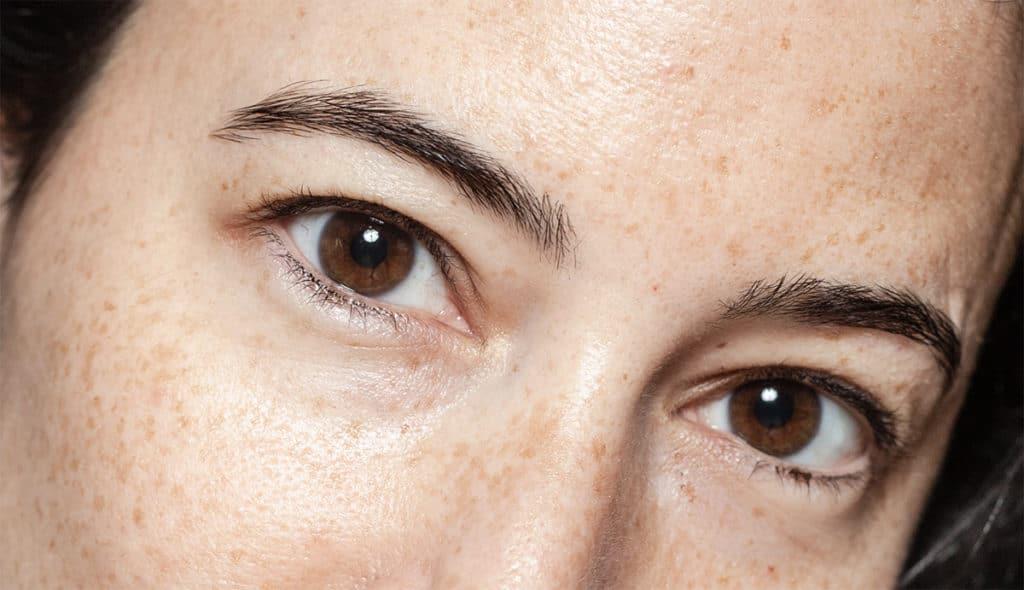 Ptosis and Botox treating hooded eyelids - Harley Academy aesthetics training courses