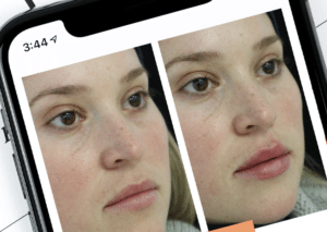 BOX BEFORE AND AFTER PHOTOS OF LIP FILLER INJECTABLE TREATMENTS PROS AND CONS AESTHETICS PRACTITIONERS - HARLEY ACADEMY AESTHETIC MEDICINE TRAINING COURSES