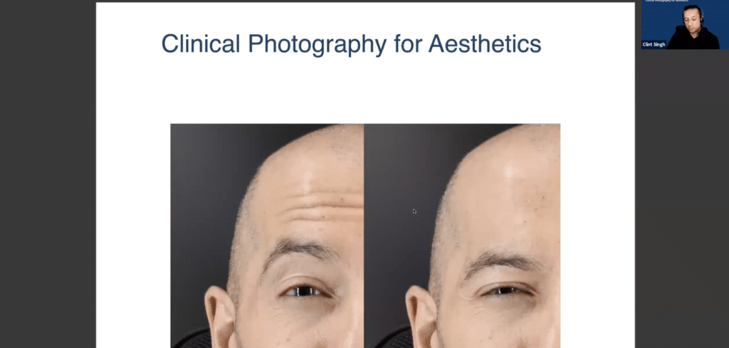 Clint Singh Clinical Photography Specialist in Aesthetics Before and After Photos Guide - Harley Academy Aesthetic Medicine Training Courses